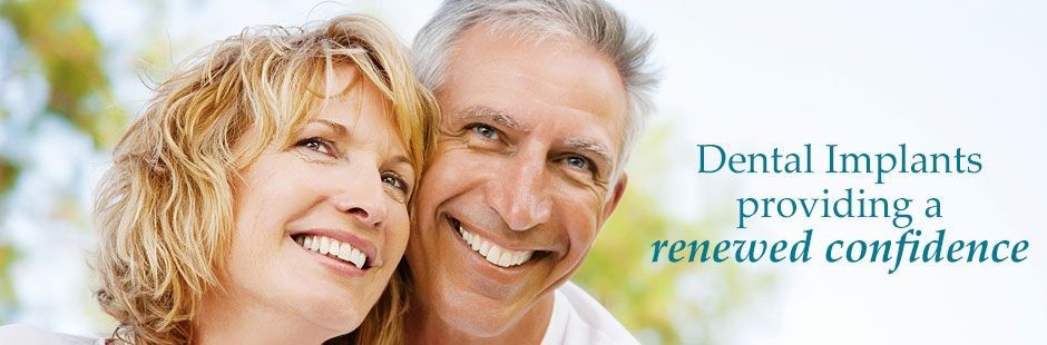 Preston Dental Implants
